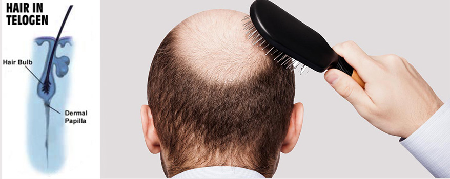 How to reduce hairfall- Instasculpt