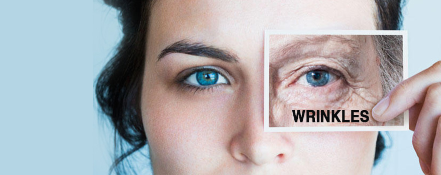 What are the causes of Wrinkles